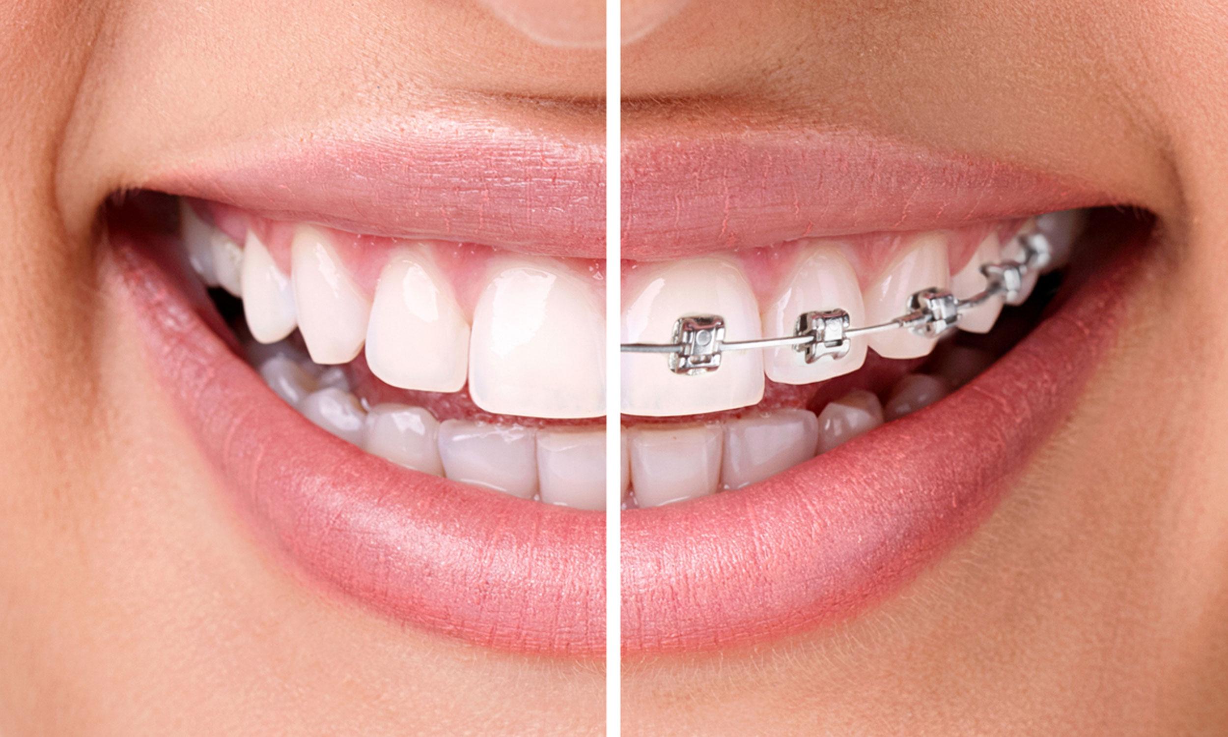 Material-de-ortodoncista-2